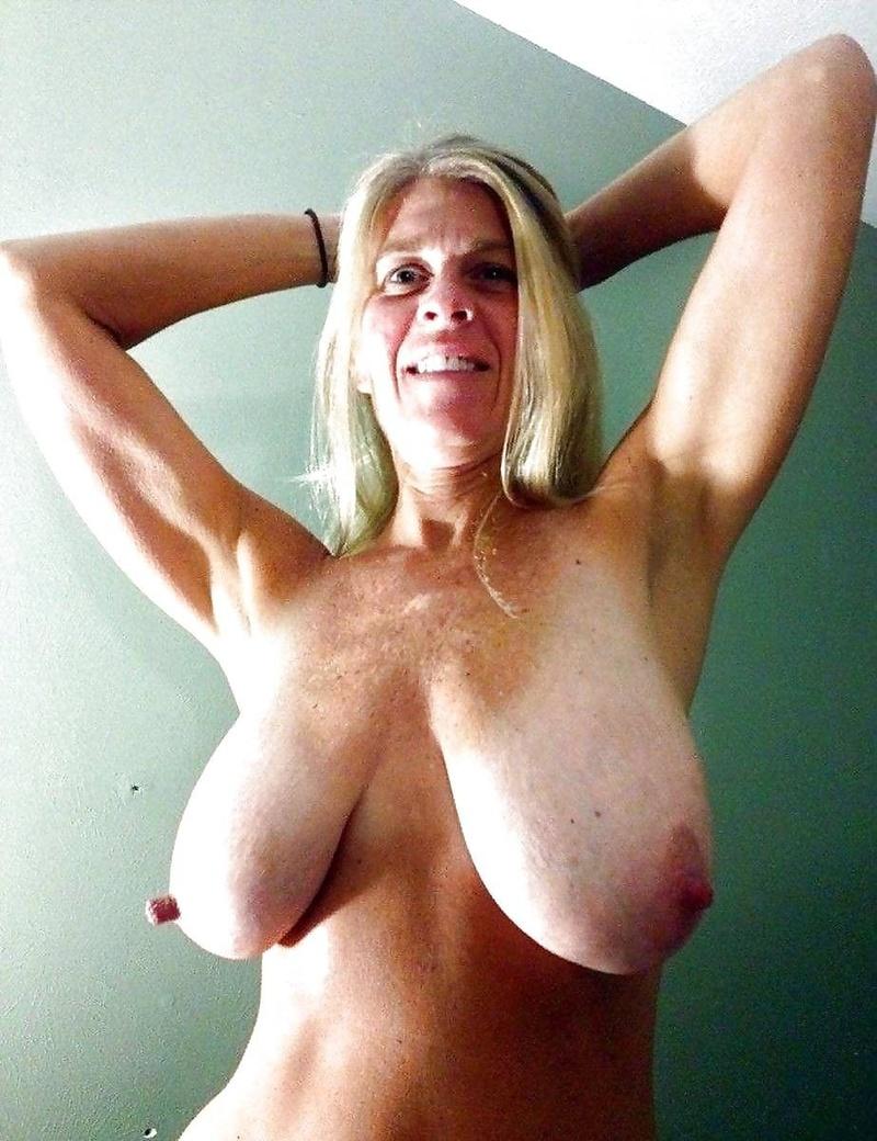 волосня на груди фото